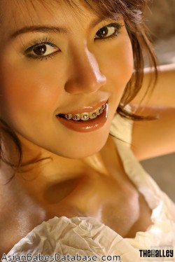 nude-girl-braces-06